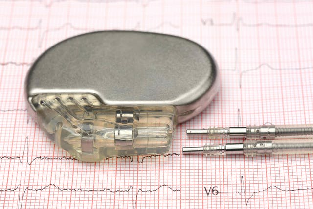 Pacemaker Implantation for Cats - Conditions Treated, Procedure, Efficacy, Recovery, Cost, Considerations, Prevention