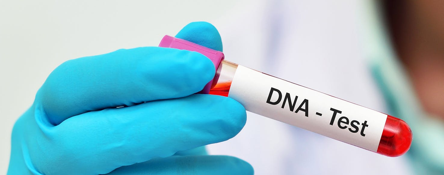 wellness-is-it-worth-getting-your-dog-dna-tested-hero-image
